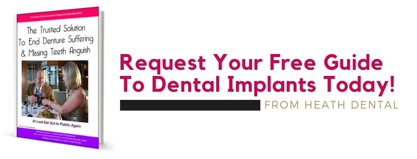Dental Implants Guide Free Download
